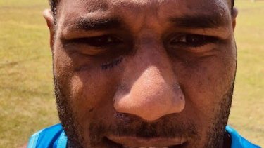 Suliasi Vunivalu received seven stitches to his cuts from the Bali king hit.
