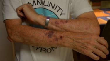 Jim Beatson shows damage to his arms caused during an incident with Premier Gladys Berejiklian's security staff.