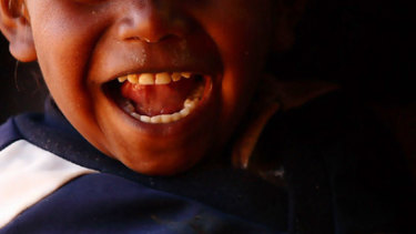 Researchers have shown simple interventions in children's dental health in remote Indigenous communities have positive ongoing effects.