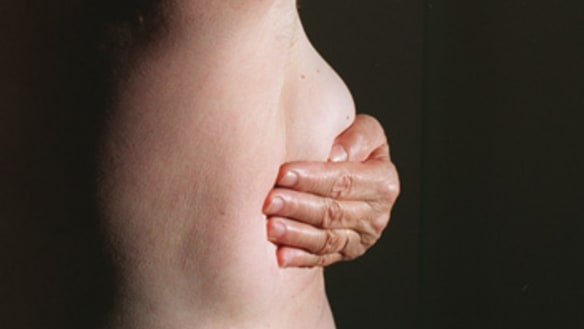 One in four breast cancers could be prevented, exhaustive evidence review finds