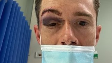 Jockey Jay Ford after he was hit by a flying horse shoe.