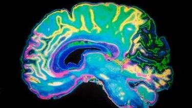 A coloured MRI scan of the human brain.