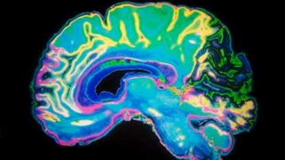 COVID-19 could lead to cognitive decline, new research suggests