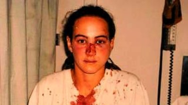Corinna Horvath after she was allegedly assaulted by police.