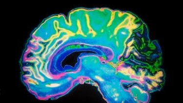 Coloured MRI scan of a human brain.