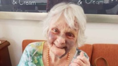 'No honesty comes out' - inquiry into 87-year-old's bruised face